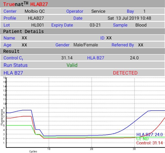 Truenat HLA B27